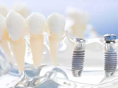 implantate mit schrauben