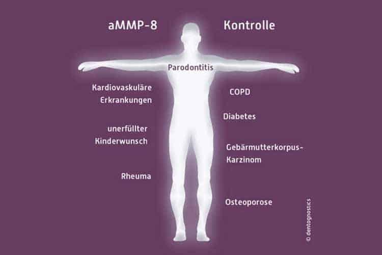 KU64 Parodontose Früherkennungstest