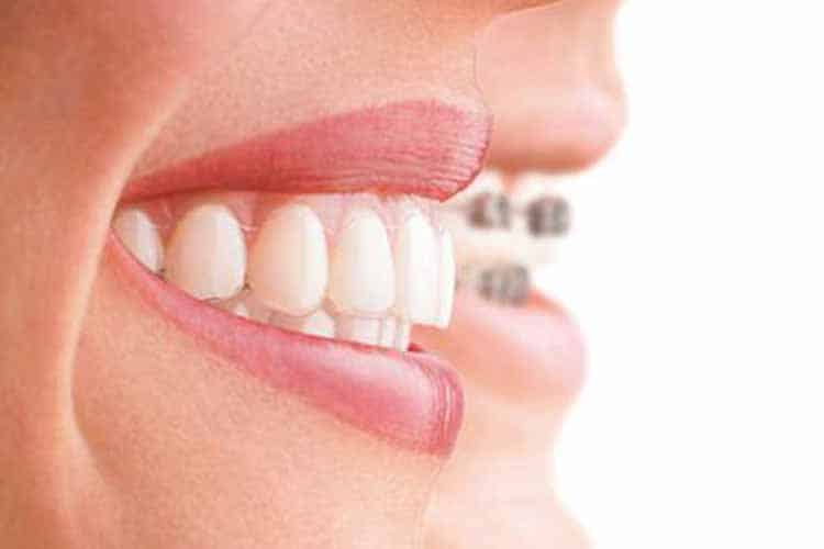 Zahnkorrektur Berlin